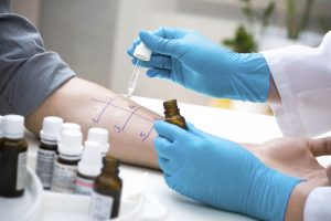 Skin test being administered -Allergy Testing