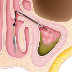 Illustration of Sinus and balloon sinuplasty pocedure